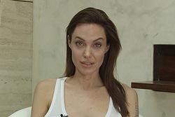 Анджелина Джоли заболела ветрянкой